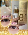 Labo Transdermic Total Eye care Anti - Dark circles eye cream 去黑眼圈眼霜